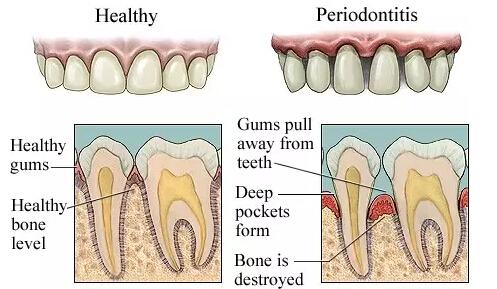 口腔牙龈结构图